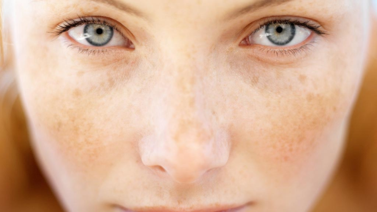 Melasma-natural-treatment-2