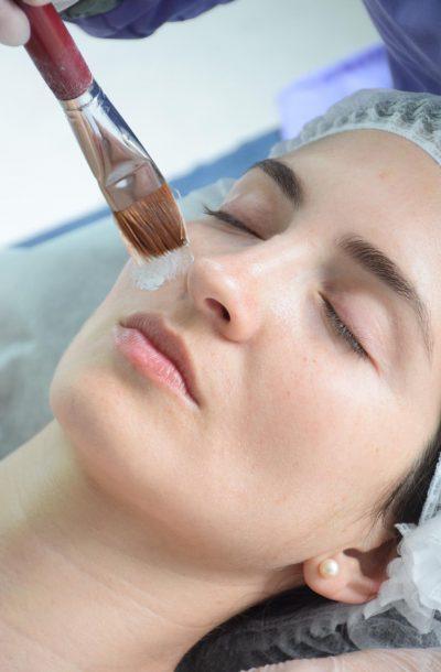 -Peeling Dra Pilar Navarro Dermatologa
